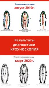 Кроуноскопия Кемерово фото ауры